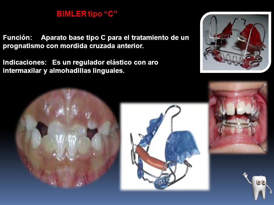 BIMLER tipo C Función: Aparato base tipo C para el tratamiento de un prognatismo con mordida cruzada anterior.