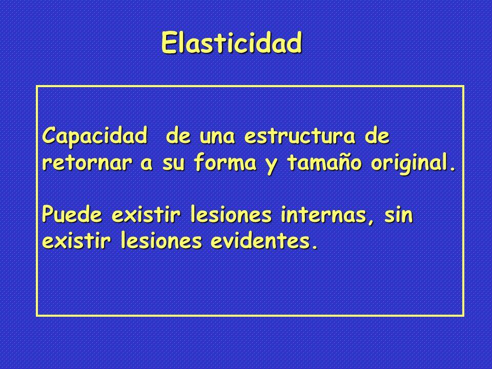 Elasticidad Capacidad de una estructura de