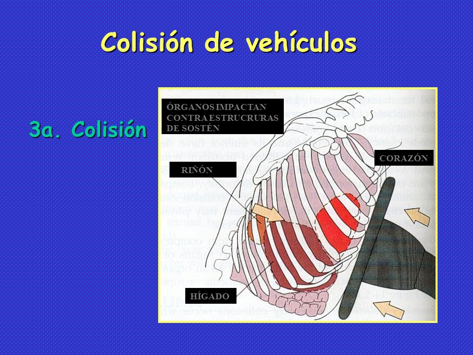 Colisión de vehículos 3a. Colisión ÓRGANOS IMPACTAN CONTRA ESTRUCRURAS