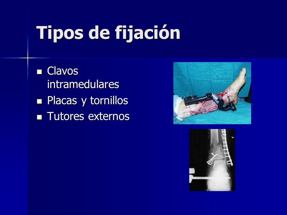 Tipos de fijación Clavos intramedulares Placas y tornillos