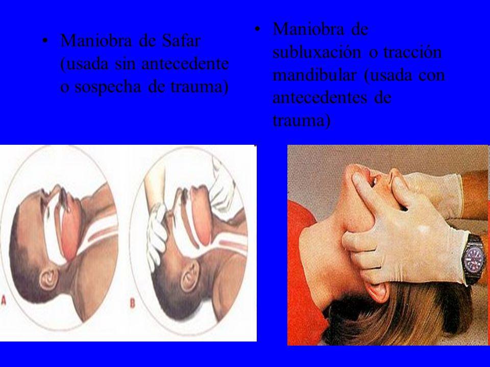 Maniobra de subluxación o tracción mandibular (usada con antecedentes de trauma)