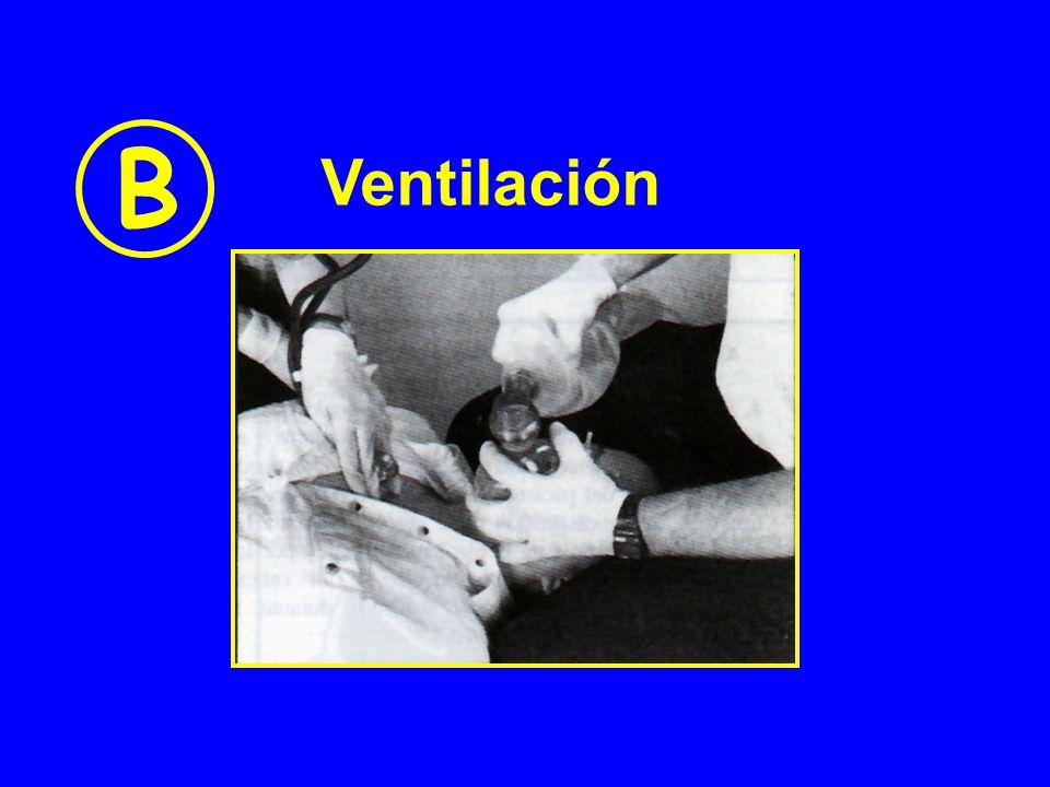B Ventilación