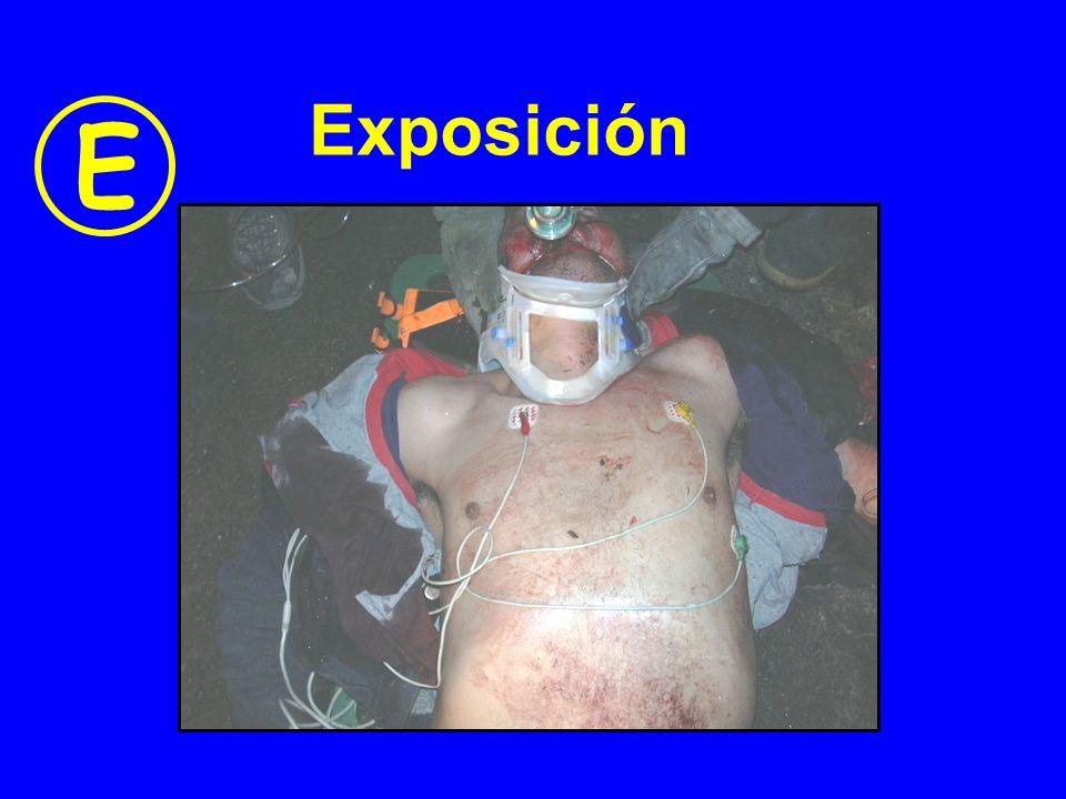 Exposición E
