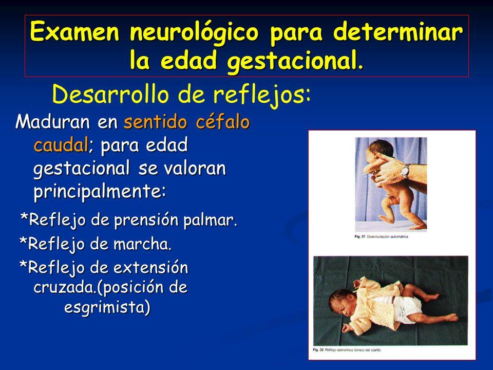 Examen neurológico para determinar la edad gestacional.