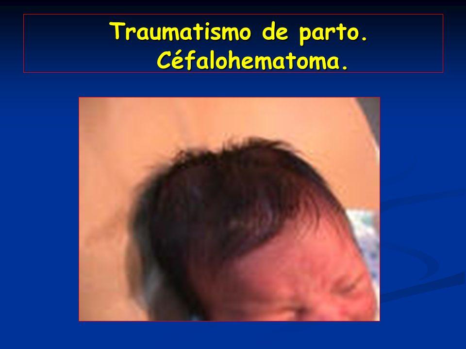 Traumatismo de parto. Céfalohematoma.