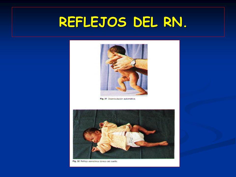 REFLEJOS DEL RN.