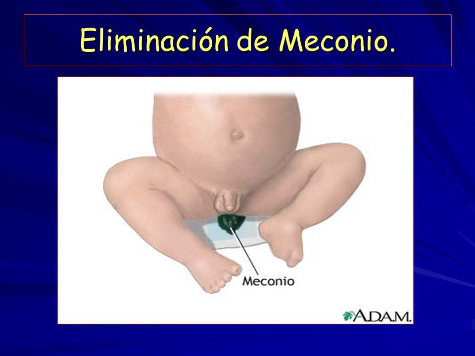 Eliminación de Meconio.