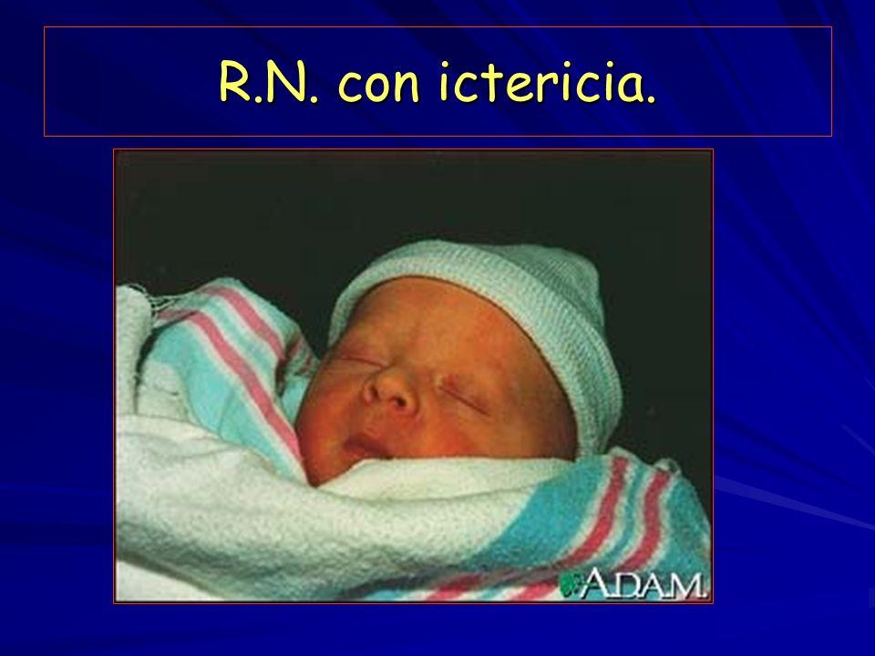 R.N. con ictericia.