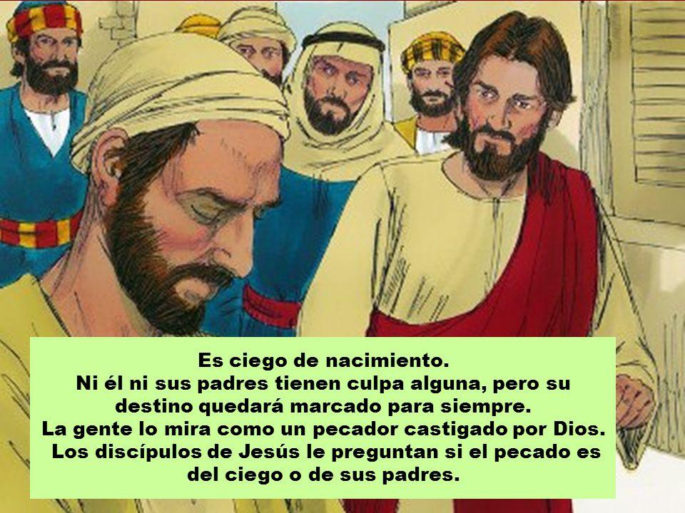 La gente lo mira como un pecador castigado por Dios.