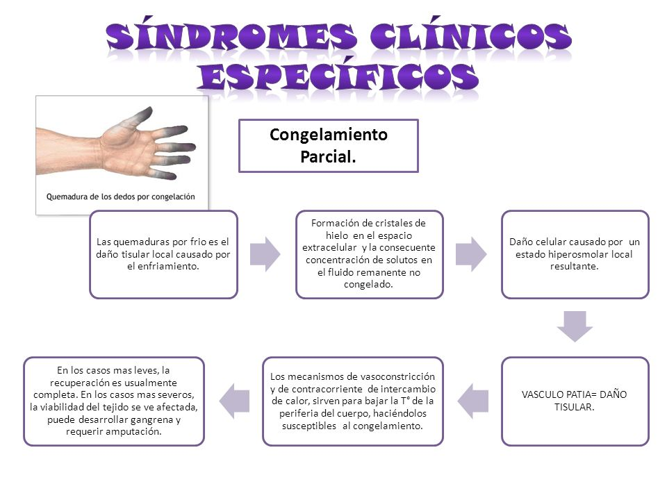 Síndromes Clínicos Específicos Congelamiento Parcial.