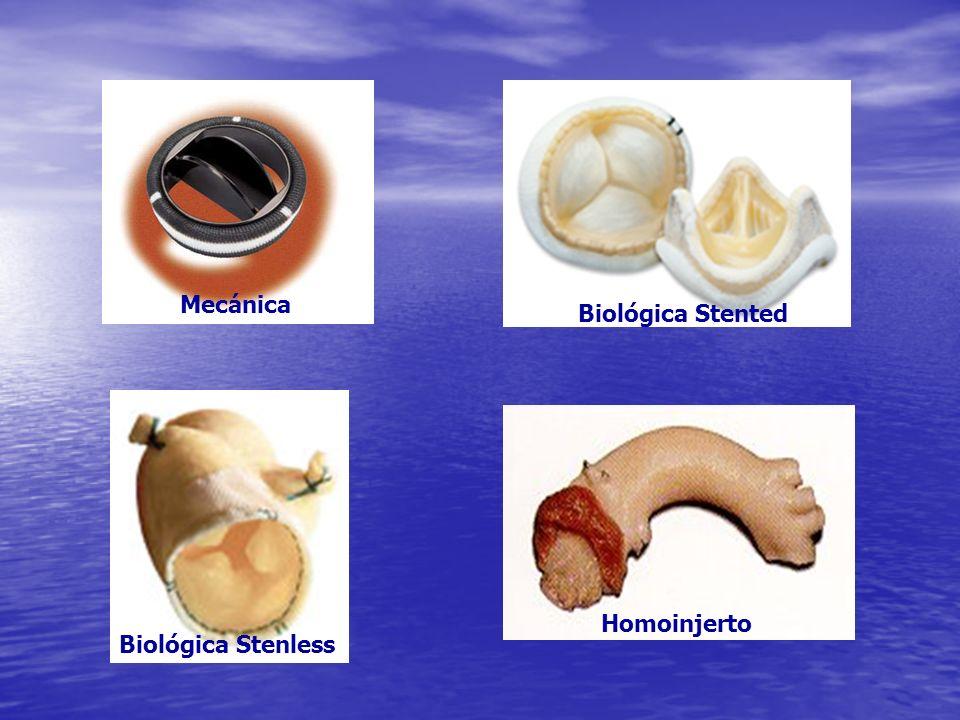 Mecánica Biológica Stented Homoinjerto Biológica Stenless