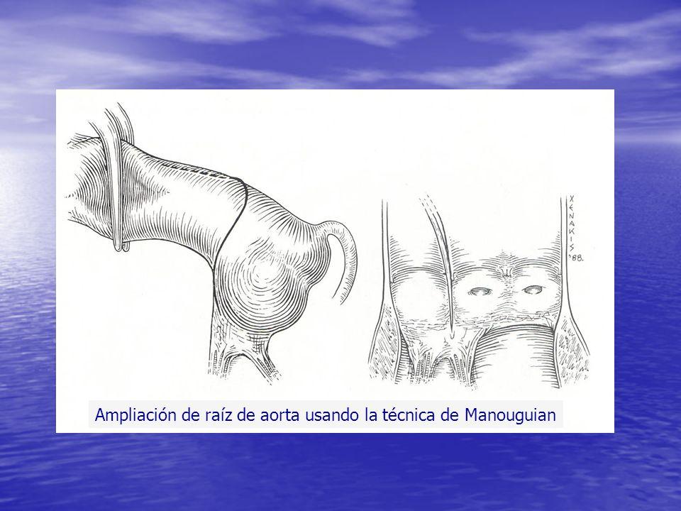 Ampliación de raíz de aorta usando la técnica de Manouguian