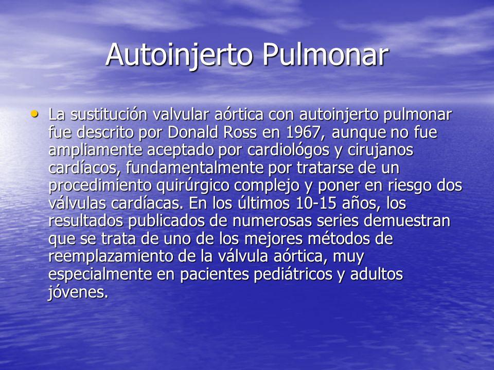 Autoinjerto Pulmonar