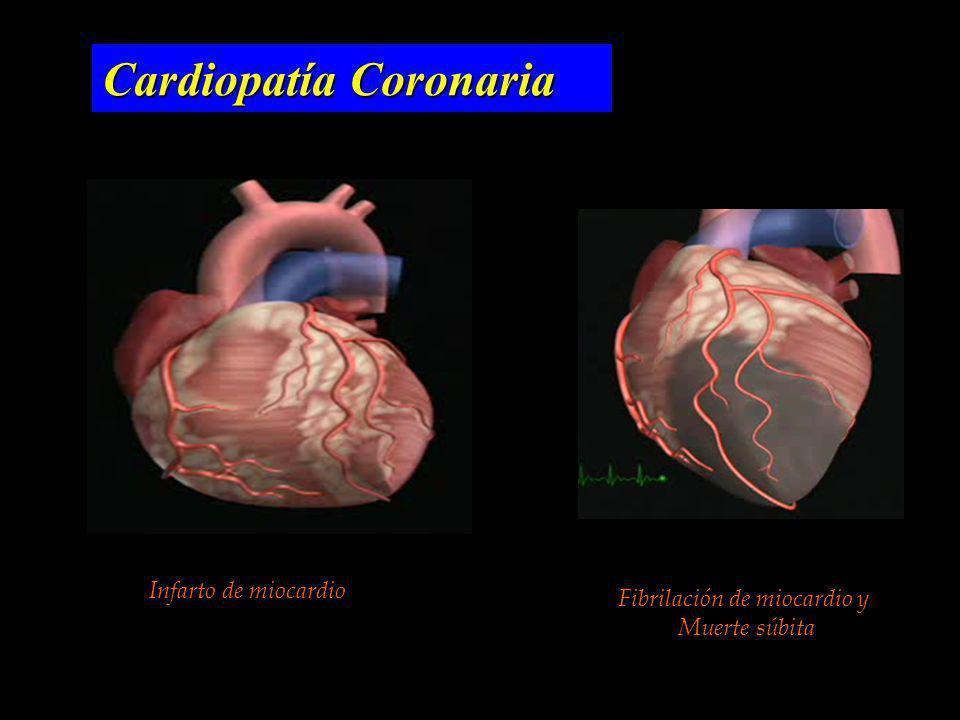Fibrilación de miocardio y