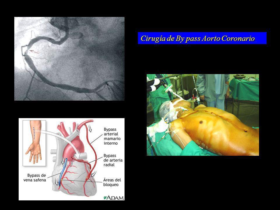 Cirugía de By pass Aorto Coronario