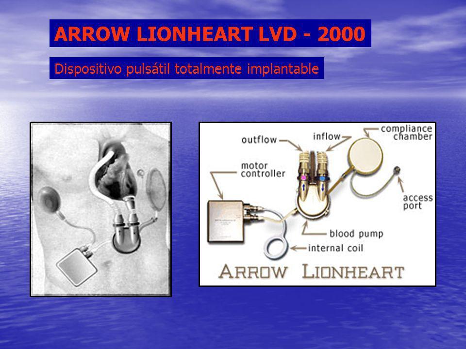 ARROW LIONHEART LVD - 2000 Dispositivo pulsátil totalmente implantable