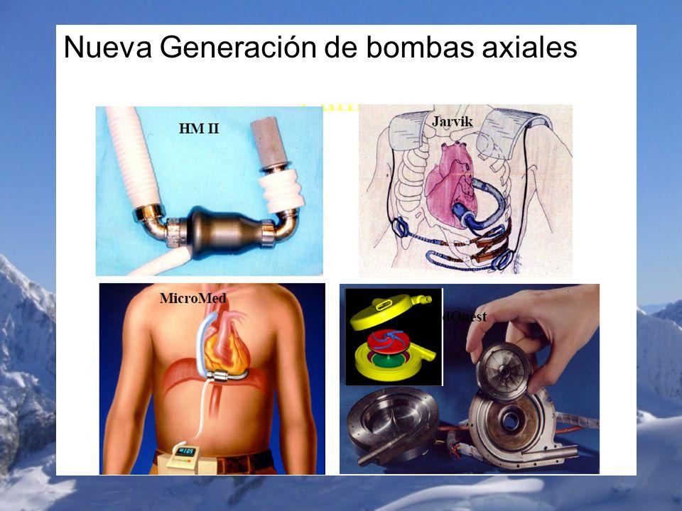 Nueva Generación de bombas axiales