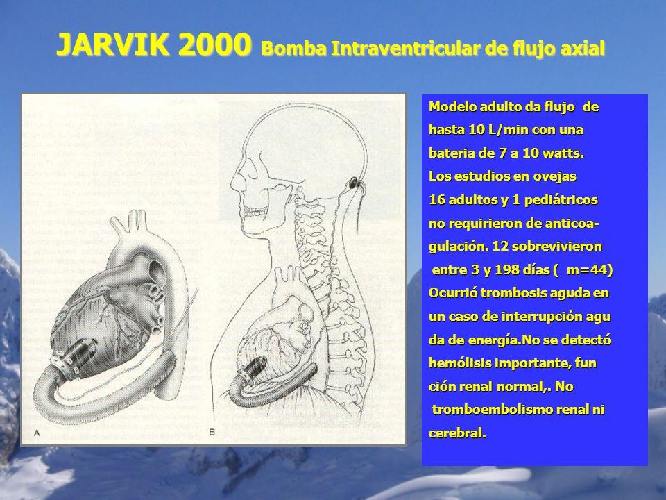 JARVIK 2000 Bomba Intraventricular de flujo axial