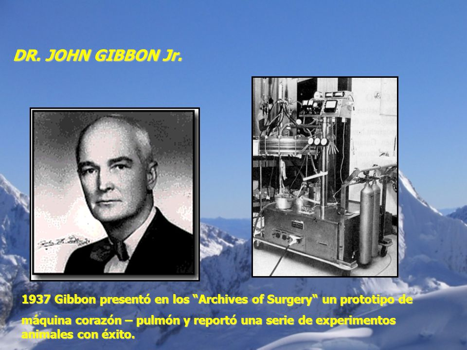 DR. JOHN GIBBON Jr.1937 Gibbon presentó en los Archives of Surgery un prototipo de.