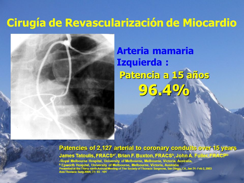 Cirugía de Revascularización de Miocardio