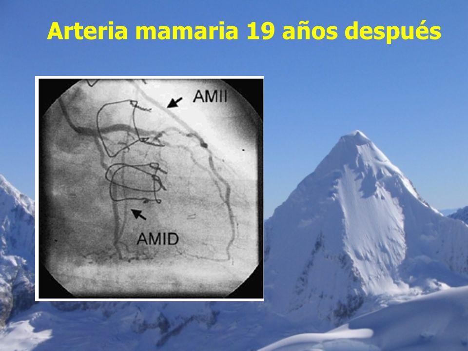 Arteria mamaria 19 años después