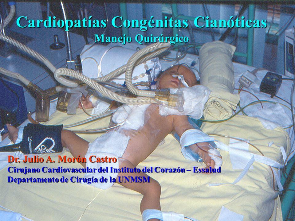 Cardiopatías Congénitas Cianóticas