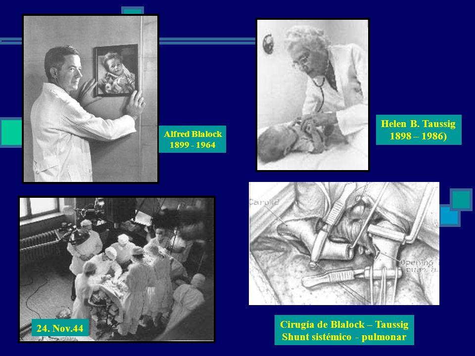 Cirugía de Blalock – Taussig Shunt sistémico - pulmonar