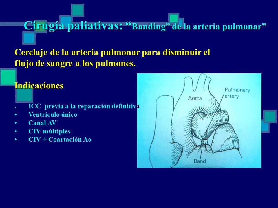 Cirugía paliativas: Banding de la arteria pulmonar
