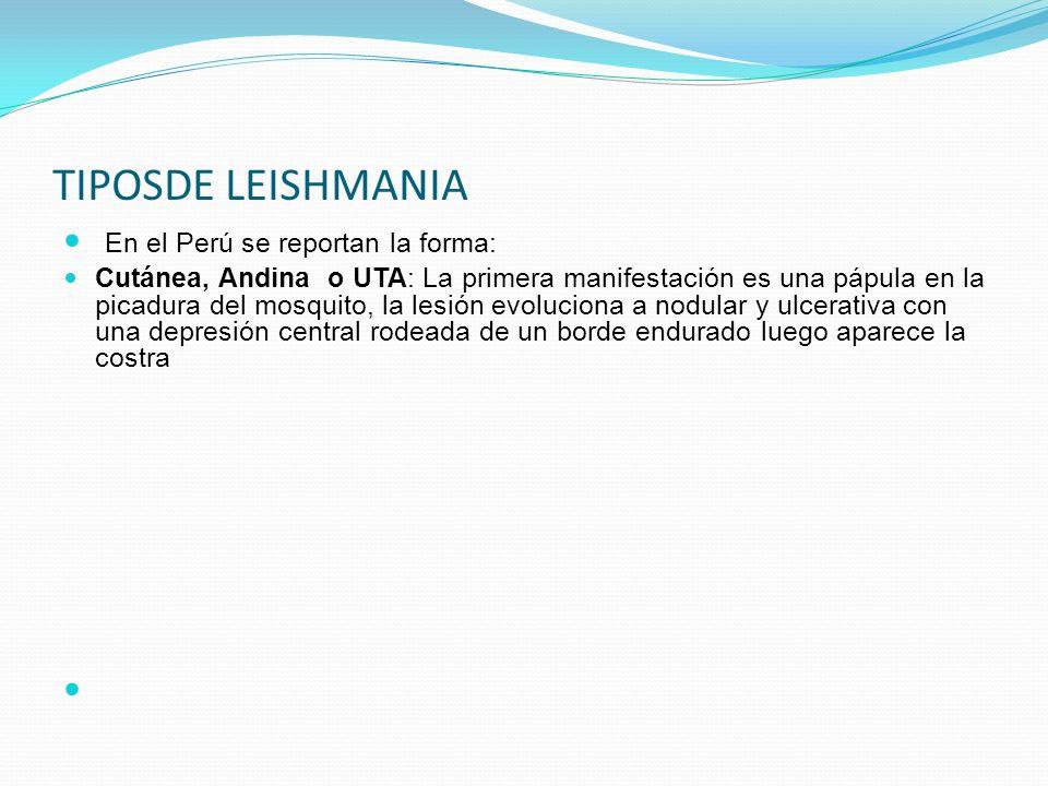 TIPOSDE LEISHMANIA En el Perú se reportan la forma: