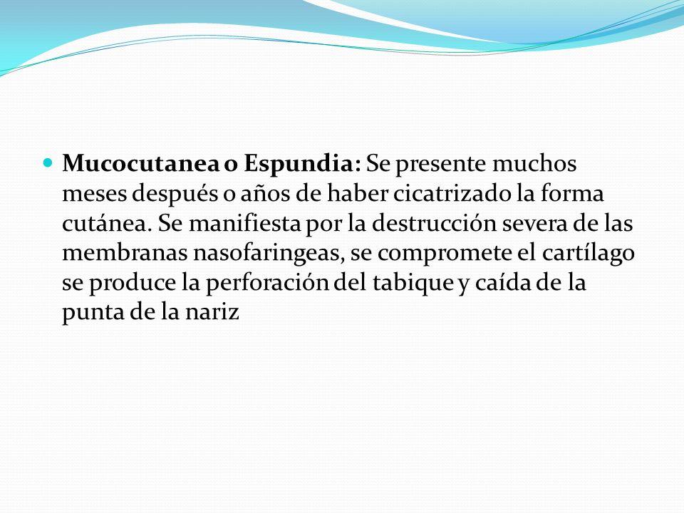 Mucocutanea o Espundia: Se presente muchos meses después o años de haber cicatrizado la forma cutánea.