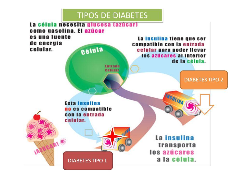 TIPOS DE DIABETES DIABETES TIPO 2 DIABETES TIPO 1