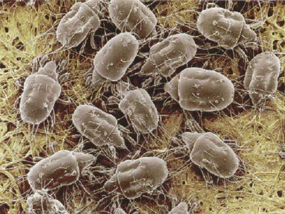 D.Pteronnyssinus Paralelo ADCCP. Adultos (29 A/26 Pl) RC y Asma. Eficacia + Seguridad. 12 meses.
