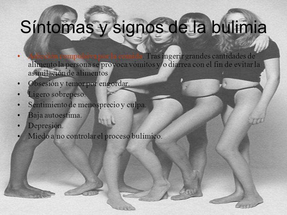 Síntomas y signos de la bulimia