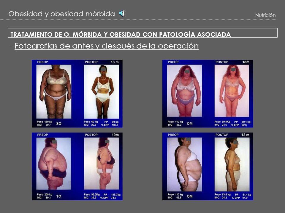 Obesidad y obesidad mórbida
