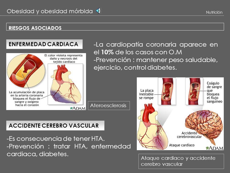 -La cardiopatía coronaria aparece en el 10% de los casos con O.M