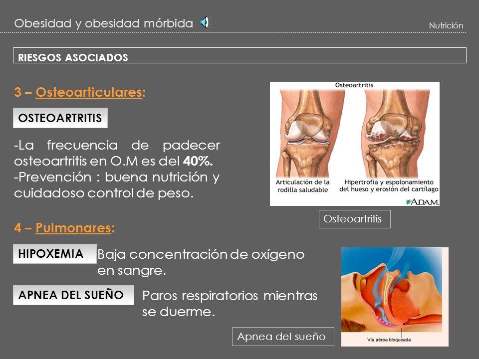 -La frecuencia de padecer osteoartritis en O.M es del 40%.