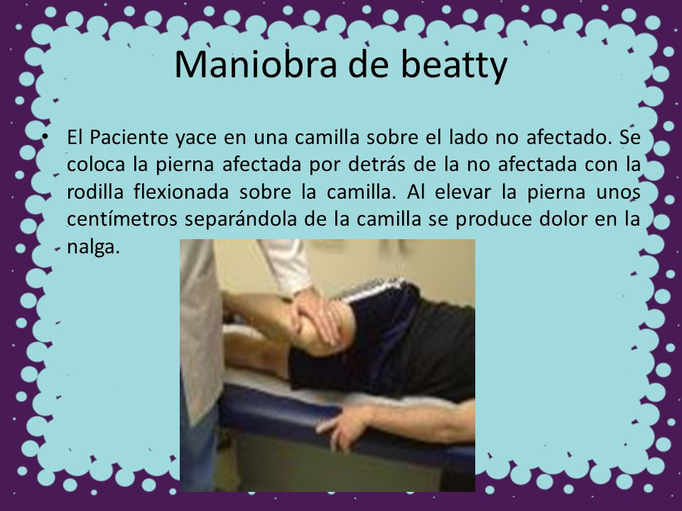 Maniobra de beatty