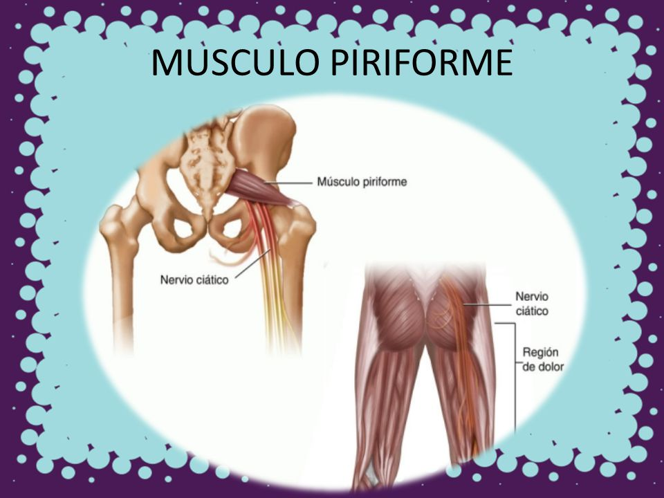 MUSCULO PIRIFORME