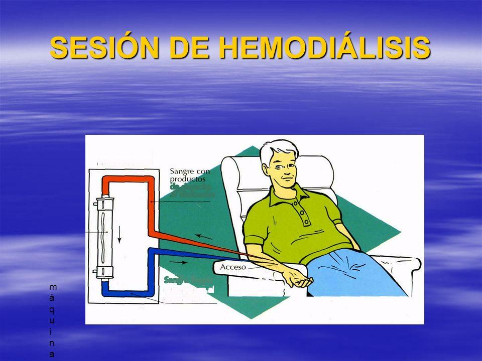 SESIÓN DE HEMODIÁLISIS