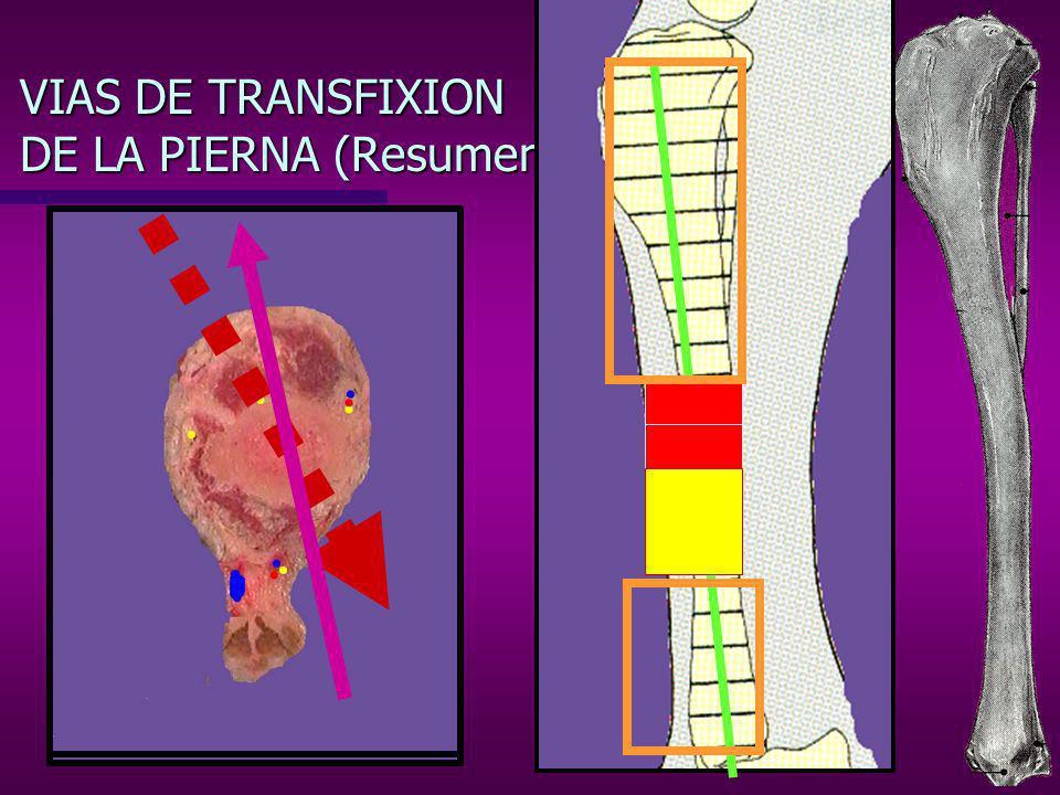VIAS DE TRANSFIXION DE LA PIERNA (Resumen)