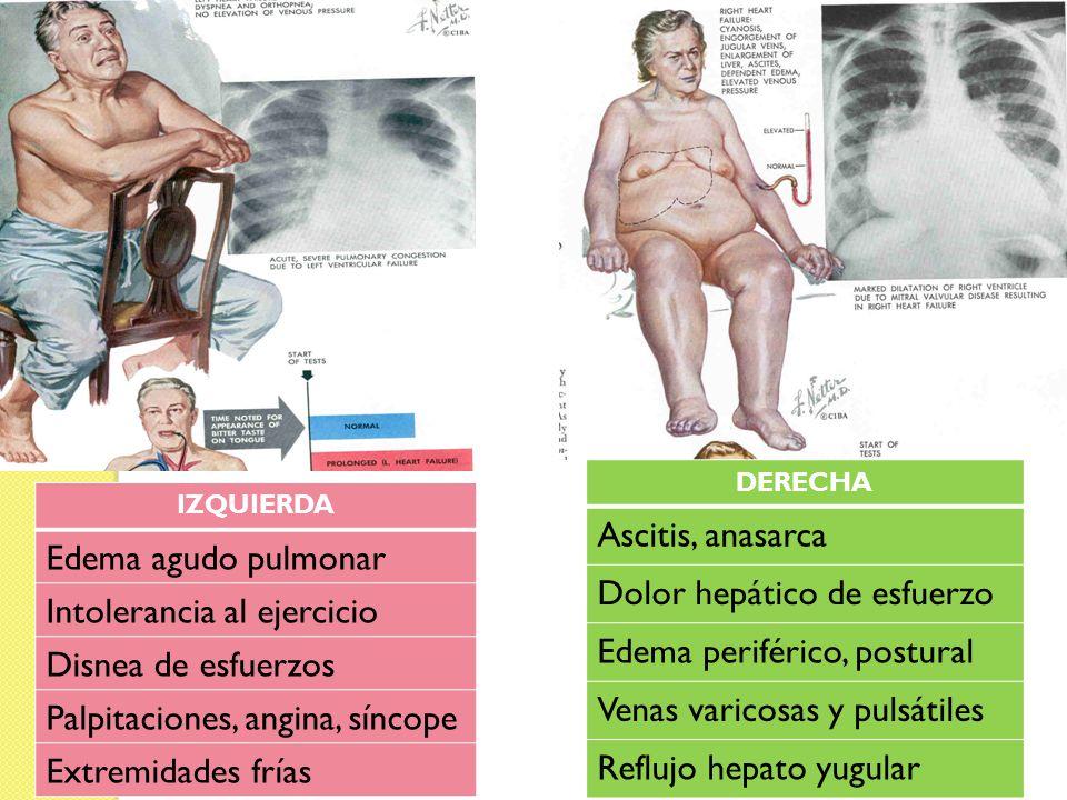 Dolor hepático de esfuerzo Edema periférico, postural