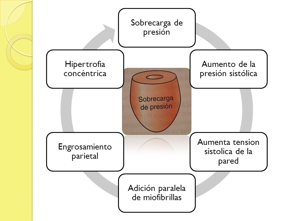Aumento de la presión sistólica