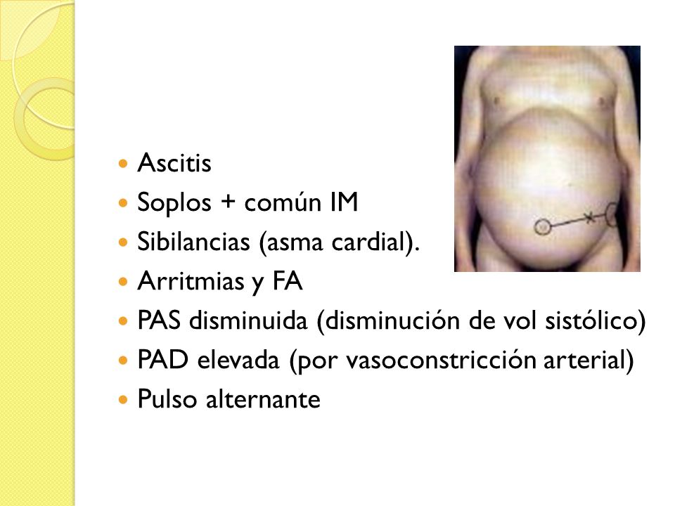 Ascitis Soplos + común IM. Sibilancias (asma cardial). Arritmias y FA. PAS disminuida (disminución de vol sistólico)