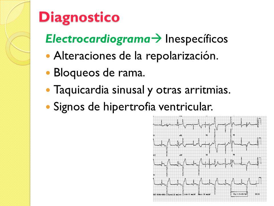 Diagnostico Electrocardiograma Inespecíficos