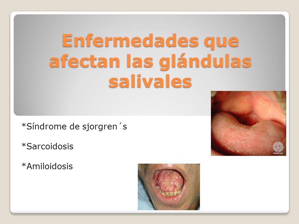 Enfermedades que afectan las glándulas salivales