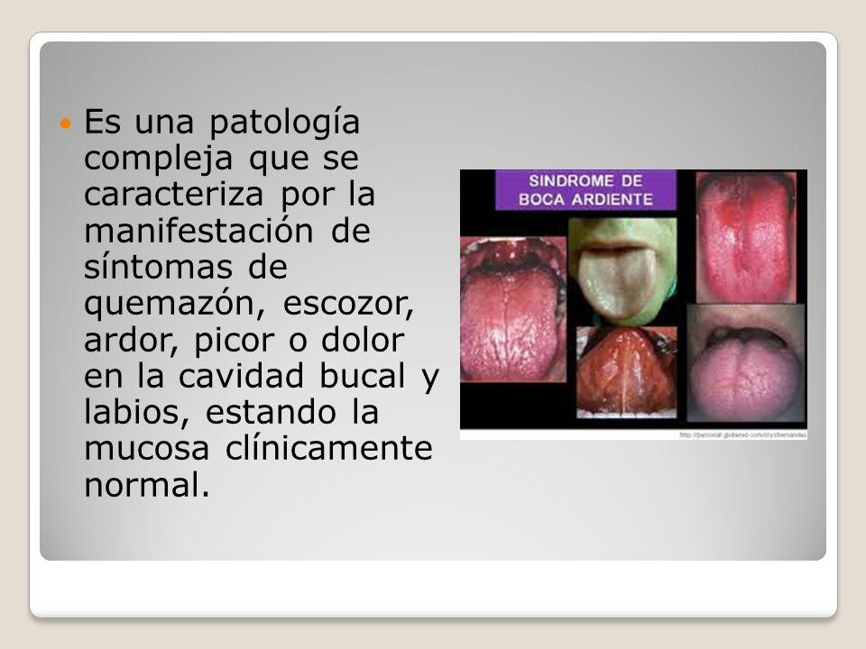 Es una patología compleja que se caracteriza por la manifestación de síntomas de quemazón, escozor, ardor, picor o dolor en la cavidad bucal y labios, estando la mucosa clínicamente normal.