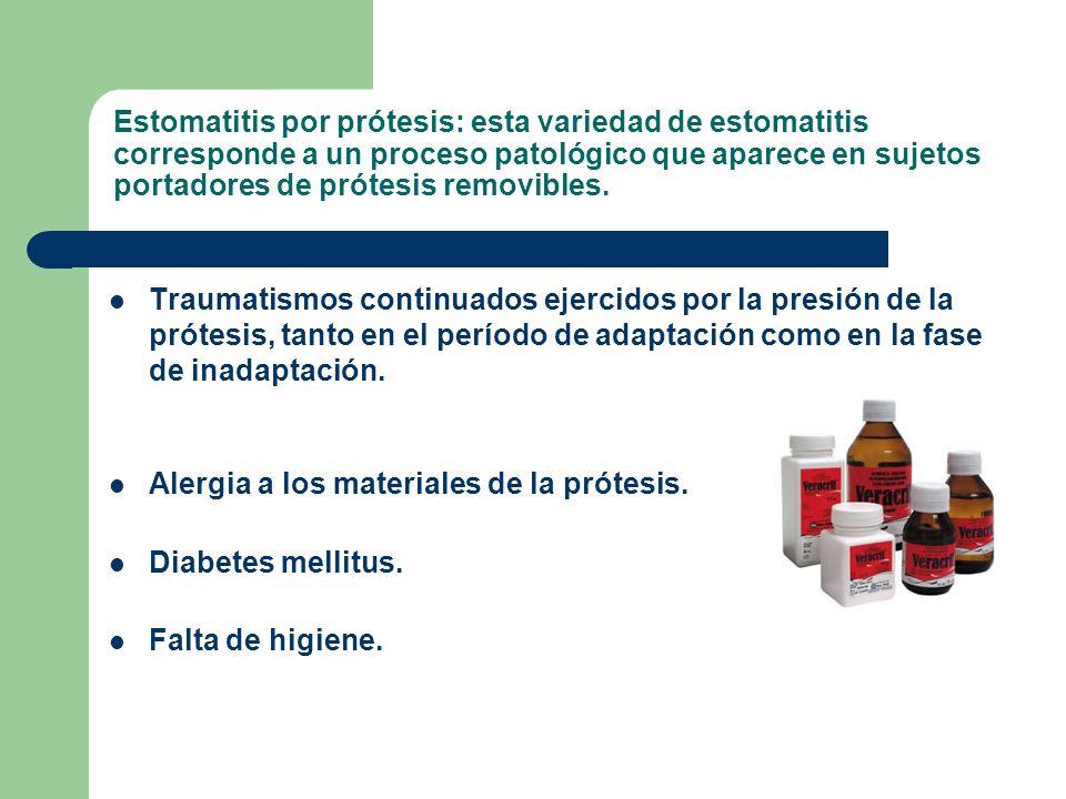 Estomatitis por prótesis: esta variedad de estomatitis corresponde a un proceso patológico que aparece en sujetos portadores de prótesis removibles.