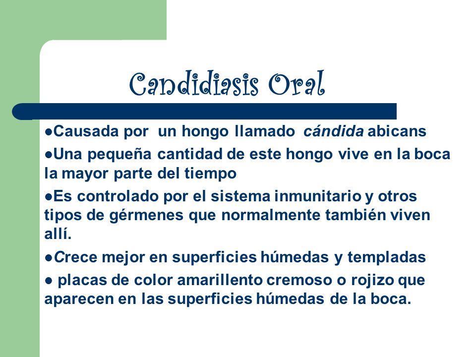 Candidiasis Oral Causada por un hongo llamado cándida abicans