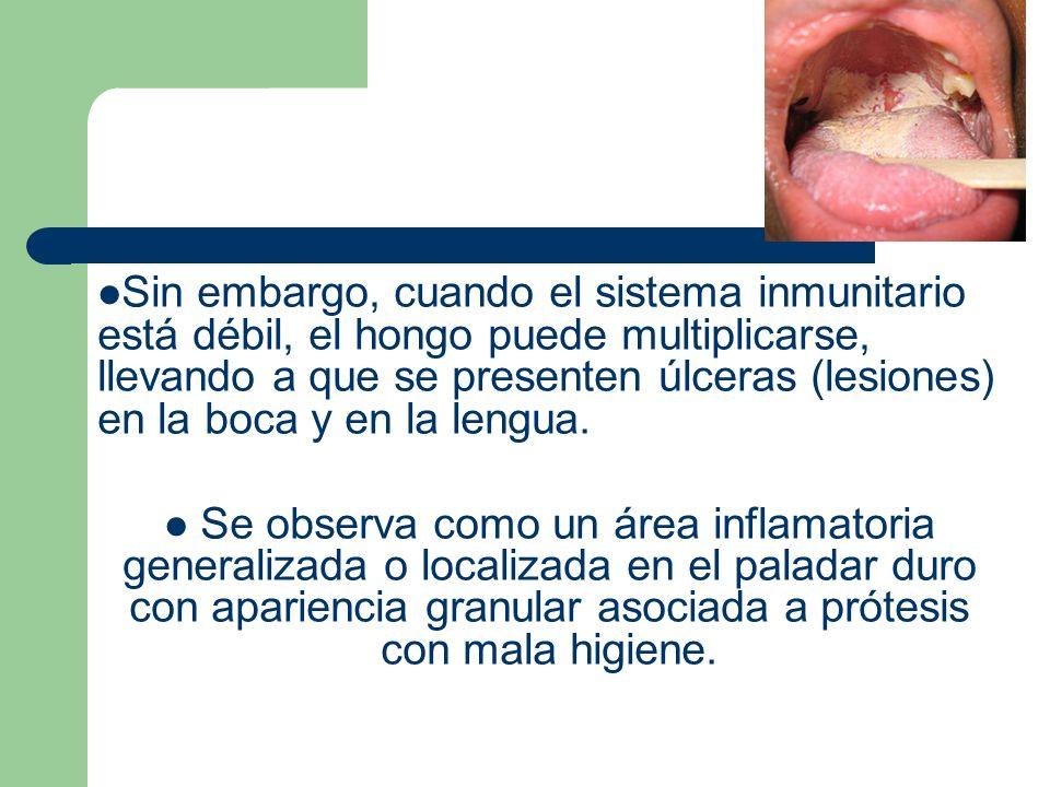 Sin embargo, cuando el sistema inmunitario está débil, el hongo puede multiplicarse, llevando a que se presenten úlceras (lesiones) en la boca y en la lengua.
