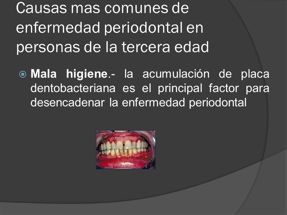 Causas mas comunes de enfermedad periodontal en personas de la tercera edad